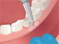 Online Game Operate Now: Dental Surgery
